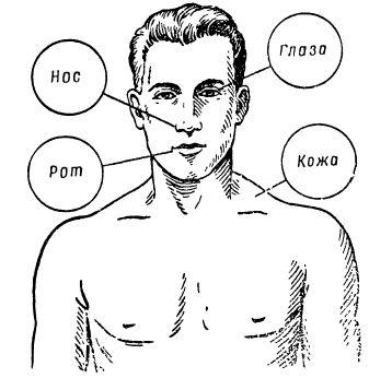 Головная боль и зуд половых органов